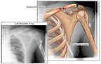 Left Shoulder Injury