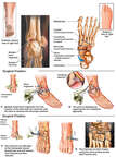 Right Foot and Ankle Fracture Dislocations with Surgical Repairs