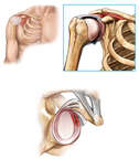 Glenoid Labrum Cartilage Injury of the Shoulder Joint